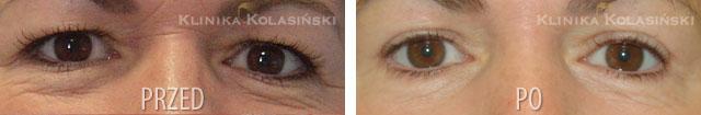 Zdjęcia przed i po: Korekcja powiek górnych