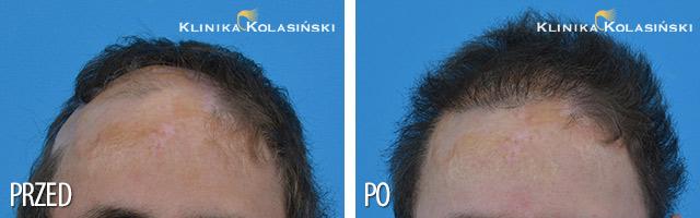 Przeszczep włosów – zdjęcia przed i po – Liczba przeszczepionych zespołów mieszkowych: 3000 FUE