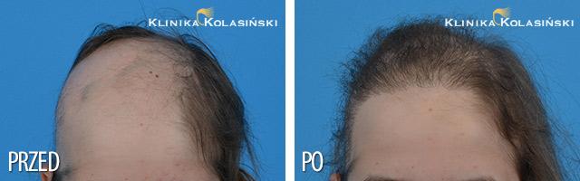 Bilder vorher und nachher: Haartransplantationen bei Kindern