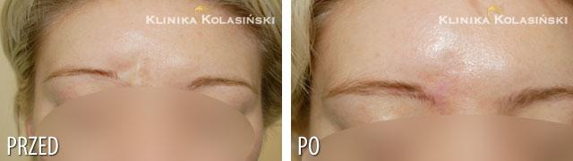 Zdjęcia przed i po