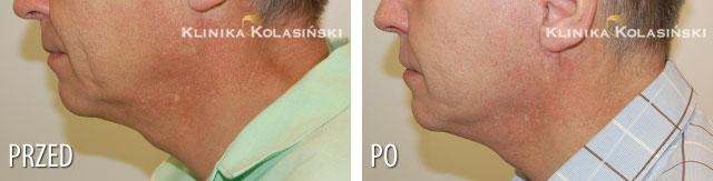 Zdjęcia przed i po: face lift twarzy