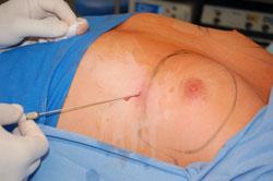 Ginekomastia - Nasączenie okolicy operowanej odpowiednim płynem znacznie zmniejsza krwawienie podczas zabiegu