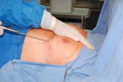 Ginekomastia - Odsysanie tkanki tłuszczowej piersi przy użyciu cienkiej sondy