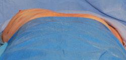 Ginekomastia - Stan po odessaniu tkanki tłuszczowej z okolicy piersi lewej - widać wyraźną różnicę konturu piersi