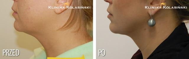 Liposukcja podbródka - zdjęcia przed i po