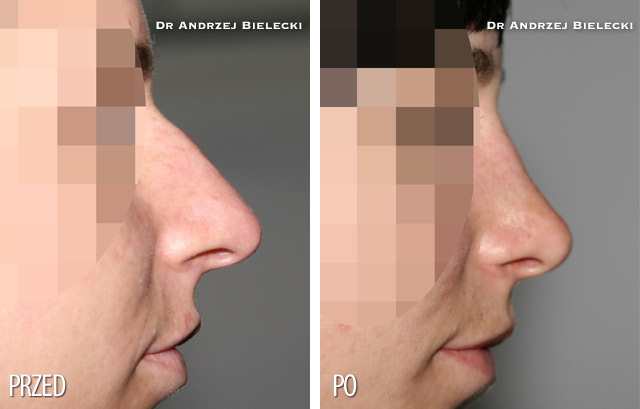 Rhinoplasty - Before and After Pictures