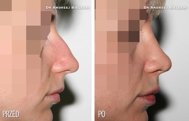 Korekcja nosa - zdjecia przed i po