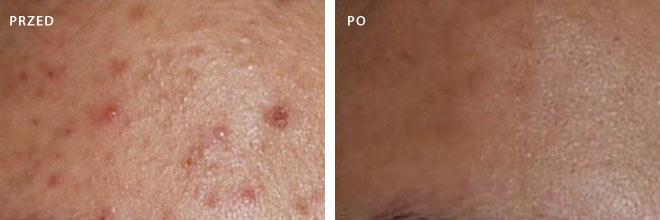 Trądzik - zdjęcia przed i po