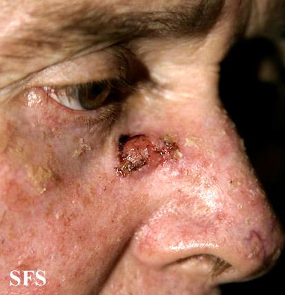 Nieczerniakowe nowotwory skóry