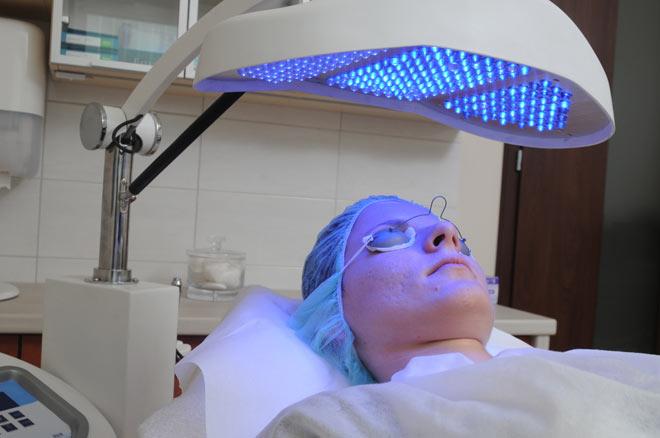 przebieg  terapii  fotodynamicznej w trądziku