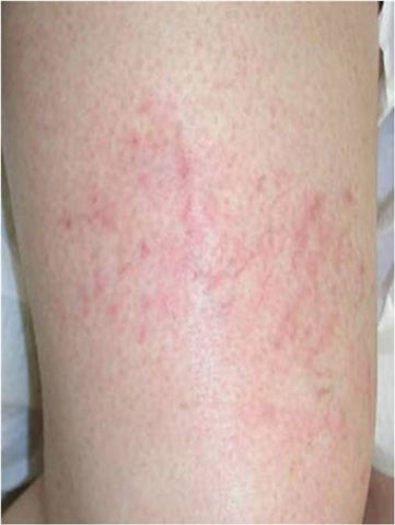 Dermatologia inwazyjna