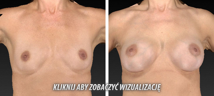 Vectra 3D Korekcja piersi - zdjęcia przed i po