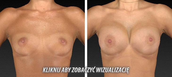 Vectra 3D - korekcja piersi zdjęcia przed i po