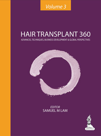 Hair Transplant 360 Advances, Techniques, Business Development and Global Perspectives