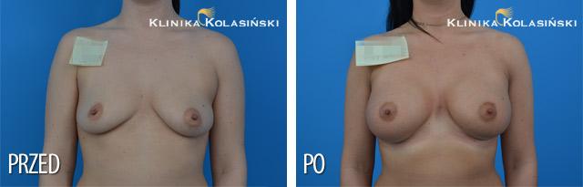 Wszczepienie pod mięsień piersiowy większy i gruczoł piersiowy protez CPG 332 445 cc firmy Mentor techniką Dual plane 3