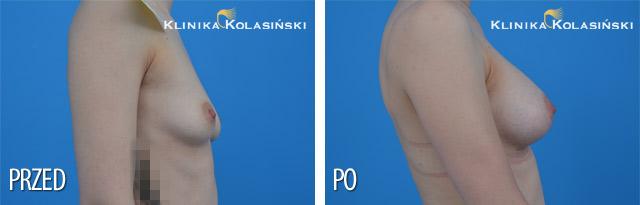 Wszczepienie protez pod mięsień piersiowy większy i gruczoł piersiowy protez anatomicznych po str prawej MF 295g, po str lewej MM 280 g (Allergan) technią Dual plane 2.