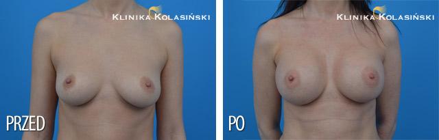 Wszczepienie pod mięsień piersiowy większy i gruczoł piersiowy implantów okrągłych o poj. 275 ml (Mentor) techniką Dual Plane I.