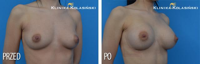 Wszczepienie pod mięsień piersiowy większy i gruczoł piersiowy implantów piersiowych okrągłych o poj. 325 ml (Mentor) techniką Multiplane I.