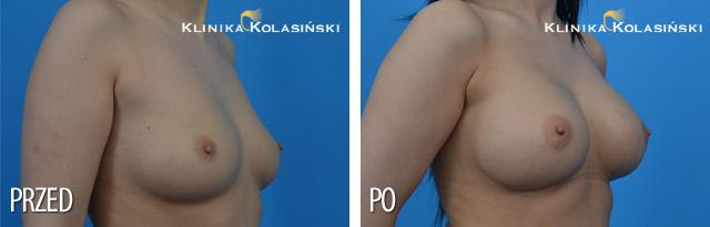 Wszczepienie pod mięsień piersiowy większy i gruczoł piersiowy implantów okrągłych o poj. 350 ml (Mentor) techniką Dual Plane I.