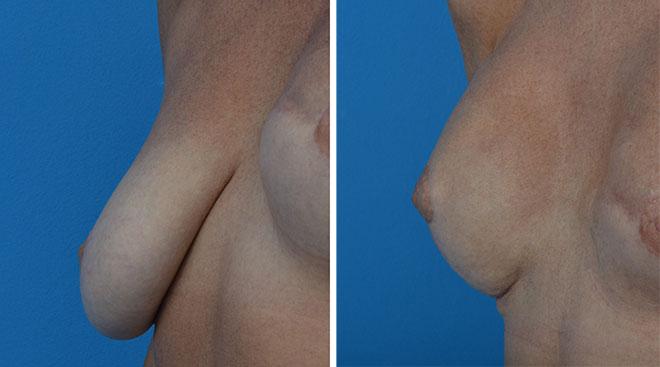 Pierś opadająca przed i po operacji profilaktycznej mastektomii połączonej z zabiegiem podniesienia piersi i wszczepienia implantu anatomicznego