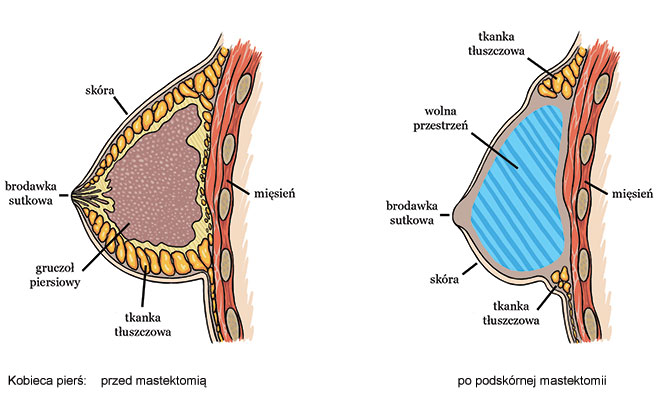 kobieca pierś przed i po mastektomii