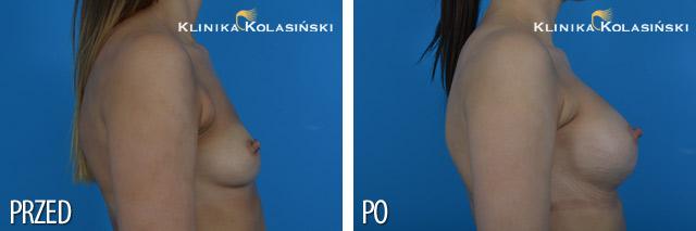 Wszczepienie pod mięsień piersiowy większy i gruczoł piersiowy implantów anatomicznych 315 ml (Polytech) techniką Multiplane I.
