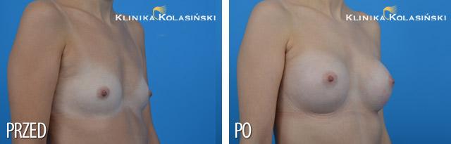 Wszczepienie pod mięsień piersiowy większy i gruczoł piersiowy implantów okrągłych 300 ml (Mentor) techniką Dual Plane I.