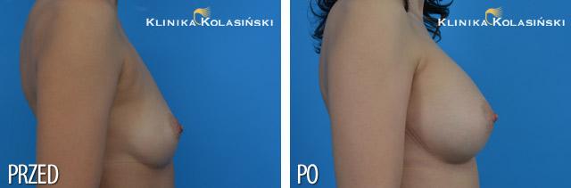 Wszczepienie pod mięsień piersiowy większy i gruczoł piersiowy implantów anatomicznych, micropoliuretanowych 350ml (Polytech) techniką Dual Plane I