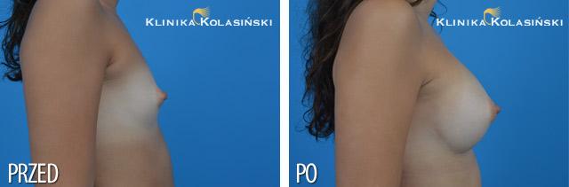 Wszczepienie pod mięsień piersiowy większy i gruczoł piersiowy implantów anatomicznych, micropoliuretanowych 295ml (Polytech) techniką Multiplane I