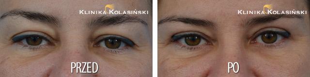 Zdjęcia przed i po: Korekcja powiek górnych i dolnych