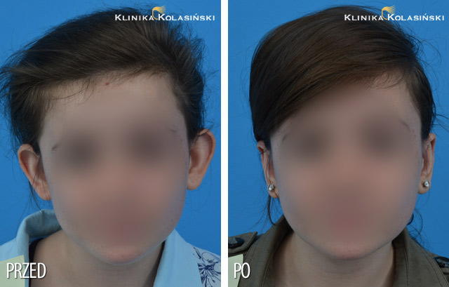 Pictures before and after: Ear correction