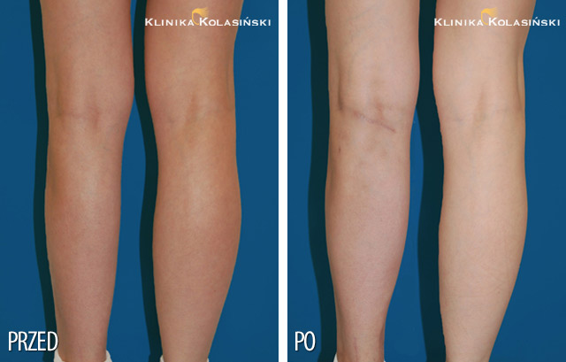 Pictures before and after: Calf correction