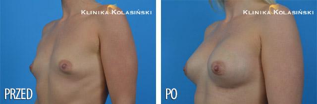 Powiększanie piersi - Klinika Kolasiński