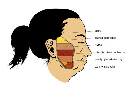 MACS-lift twarzy - Klinika Kolasiński