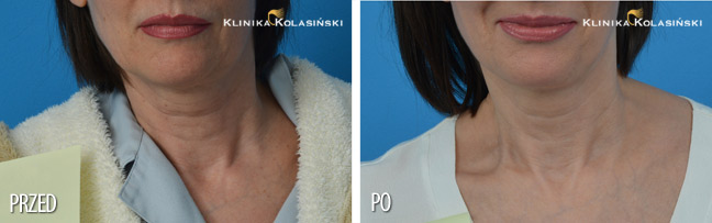 Klinika Kolasiński - Before & after pictures