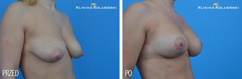 Bilder vorher und nachher: Brustlifting