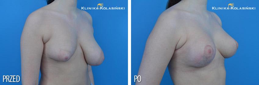 Zdjęcia przed i po: podniesienie piersi