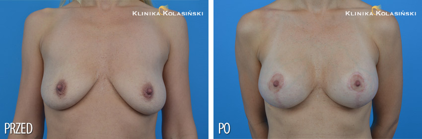 Pictures before and after: Breast lift