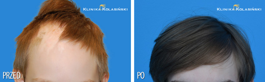 Pictures before and after: hair transplantation in children