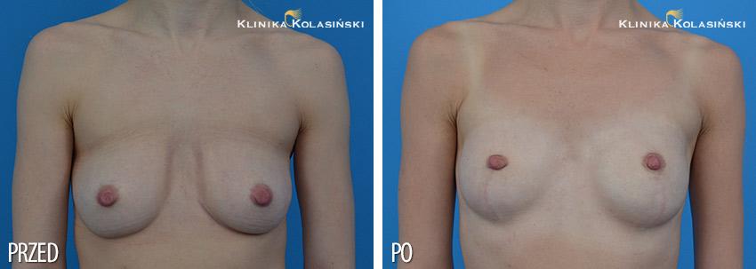 Profilaktyczna mastektomia - Klinika Kolasiński