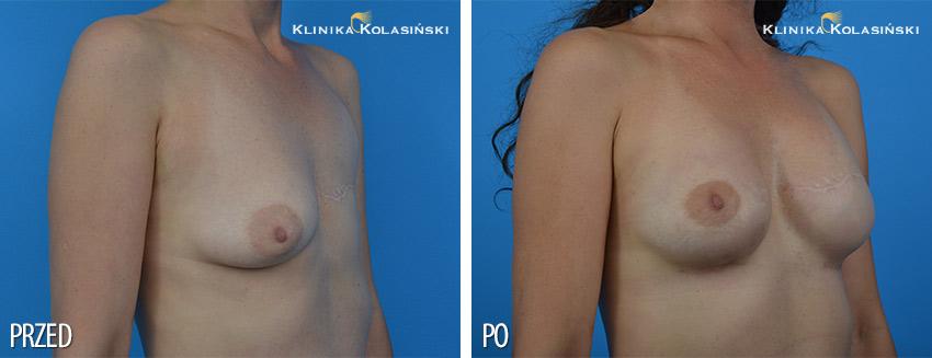 Rekonstrukcja piersi - Klinika Kolasiński