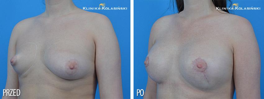 Korekcja nietypowych piersi - Klinika Kolasiński