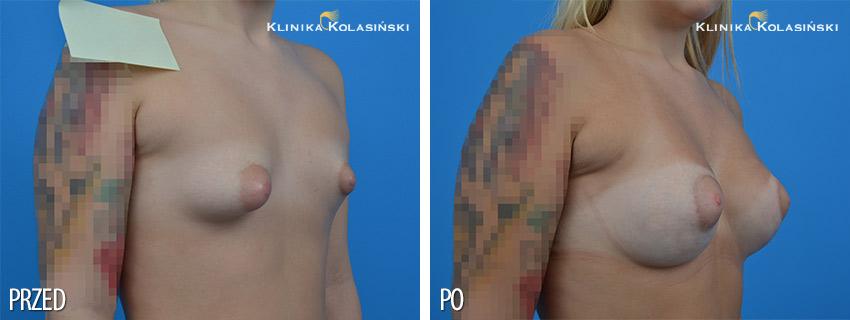 Powiększenie piersi tubularnych - Klinika Kolasiński
