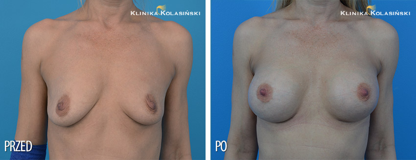 Bilder vorher und nachher: Bruststraffung