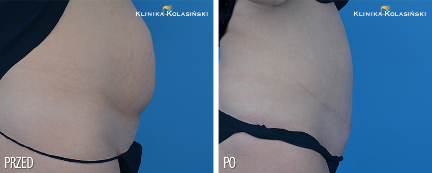 Pictures before and after: Abdominoplasty