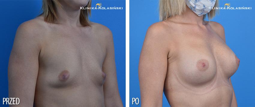 Zdjęcia przed i po: Powiększanie piersi